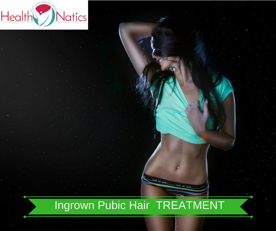 Ingrown Hair On Vagina (TREATMENT AND PREVENTION)